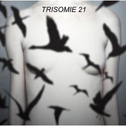 Trisomie 21 – Don't You...